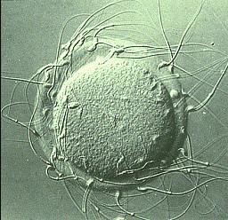 Fig.1 – Spermatozoi che circondano una cellula uovo per fecondarla - Fecondazione