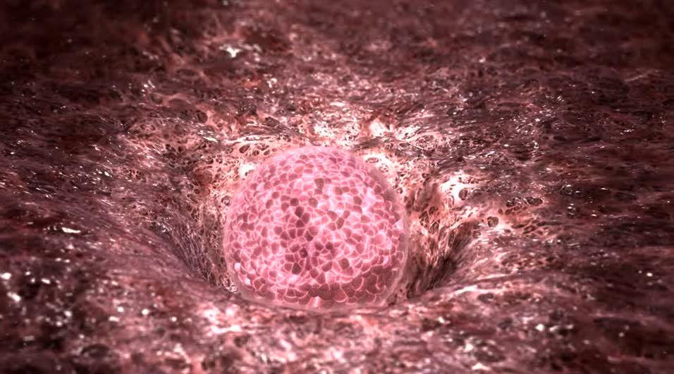 Fig.2 – Impianto uterino di una cellula uovo fecondata - Fecondazione