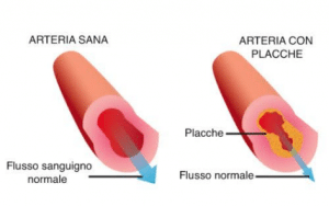 Arteria sana vs arteria con placche